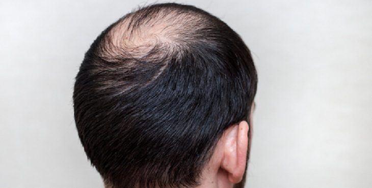 صورة شعري خفيف , اسباب سقوط الشعر