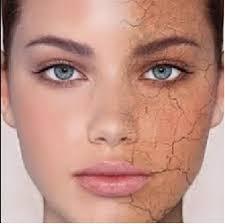 صور علاج البشرة الجافة , طرق علاج البشرة الجافة
