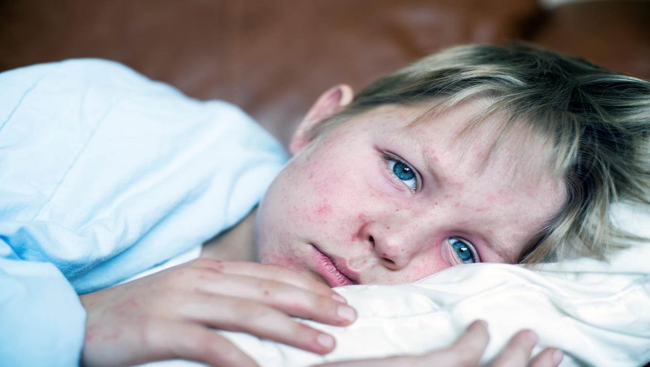 بالصور مرض الحصبة , اعراض تبلغك انك مصاب بالحصبة 3280 1