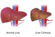 صور علاج تليف الكبد , تعرف على علاج مرض تليف الكبد