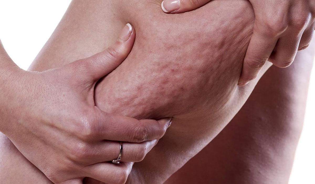 صورة ما هو السيلوليت , اسباب السيلوليت وعلاجه