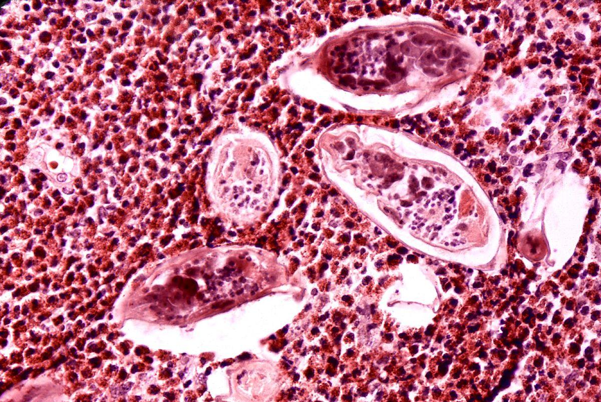 صور مرض البلهارسيا , طرق الوقاية من هذا المرض