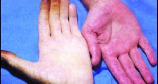 صوره مرض فقر الدم , علاج فقر الدم واعراضه