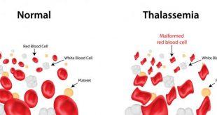 صوره مرض الثلاسيميا , معلومات قيمه عن مرض الثلاسيميا