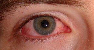 صوره علاج حساسية العين , كيف تعالج التهابات عينك
