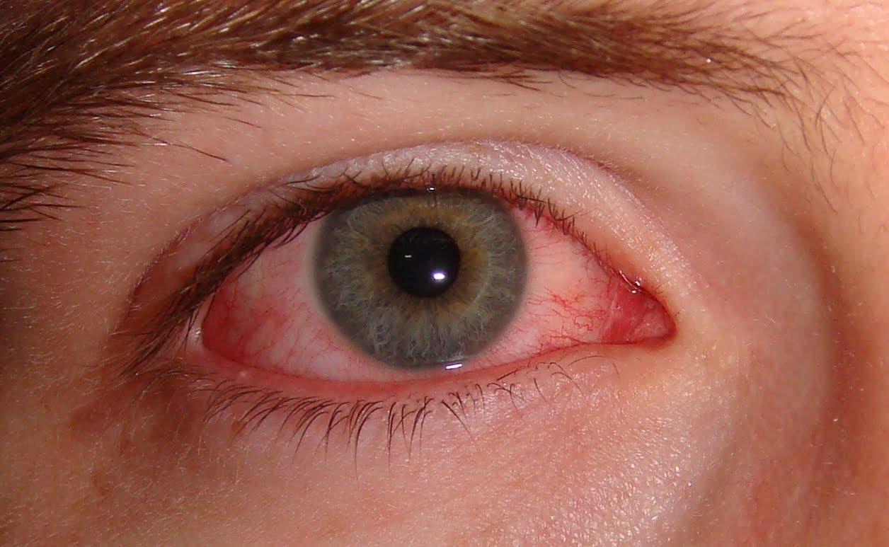 صورة علاج حساسية العين , كيف تعالج التهابات عينك