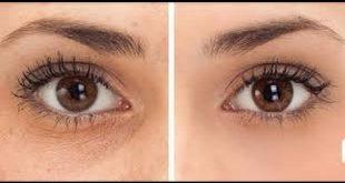 صوره الهالات السوداء تحت العين , الهالات السوداء وطرق علاجها
