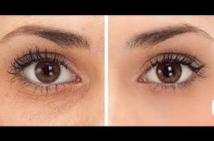 صور الهالات السوداء تحت العين , الهالات السوداء وطرق علاجها