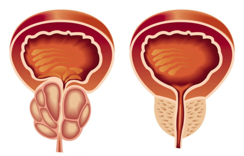 صورة علاج البروستاتا , كيفيه التخلص من البروستاتا