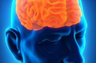 صورة اعراض سرطان الدماغ , اعراض مرض الكنسر