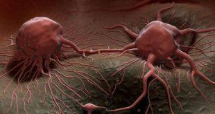 صوره علاج مرض السرطان , ما هو علاج مرض السرطان
