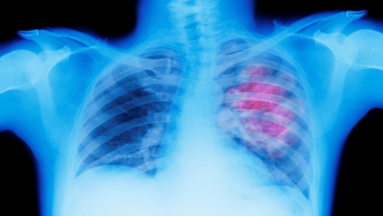 صورة اعراض سرطان الرئة , مسببات مرض سرطان الرئه