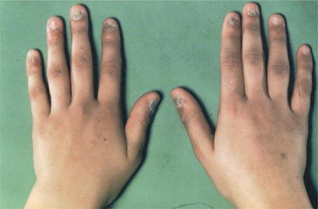 بالصور مرض اديسون , اعراض خلل الغدة الكظرية 2200 1