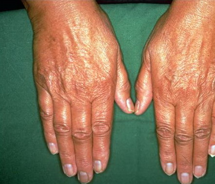 بالصور مرض اديسون , اعراض خلل الغدة الكظرية 2200 2