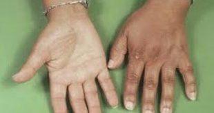 صور مرض اديسون , اعراض خلل الغدة الكظرية