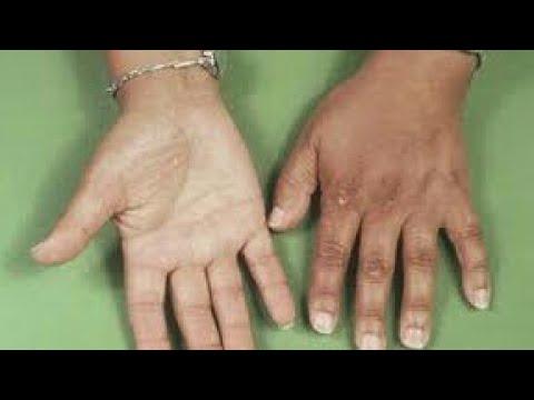 بالصور مرض اديسون , اعراض خلل الغدة الكظرية 2200