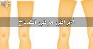 بالصور مرض الكساح , تعرف على اسباب وعلاج مرض الكساح 3567 3 310x165