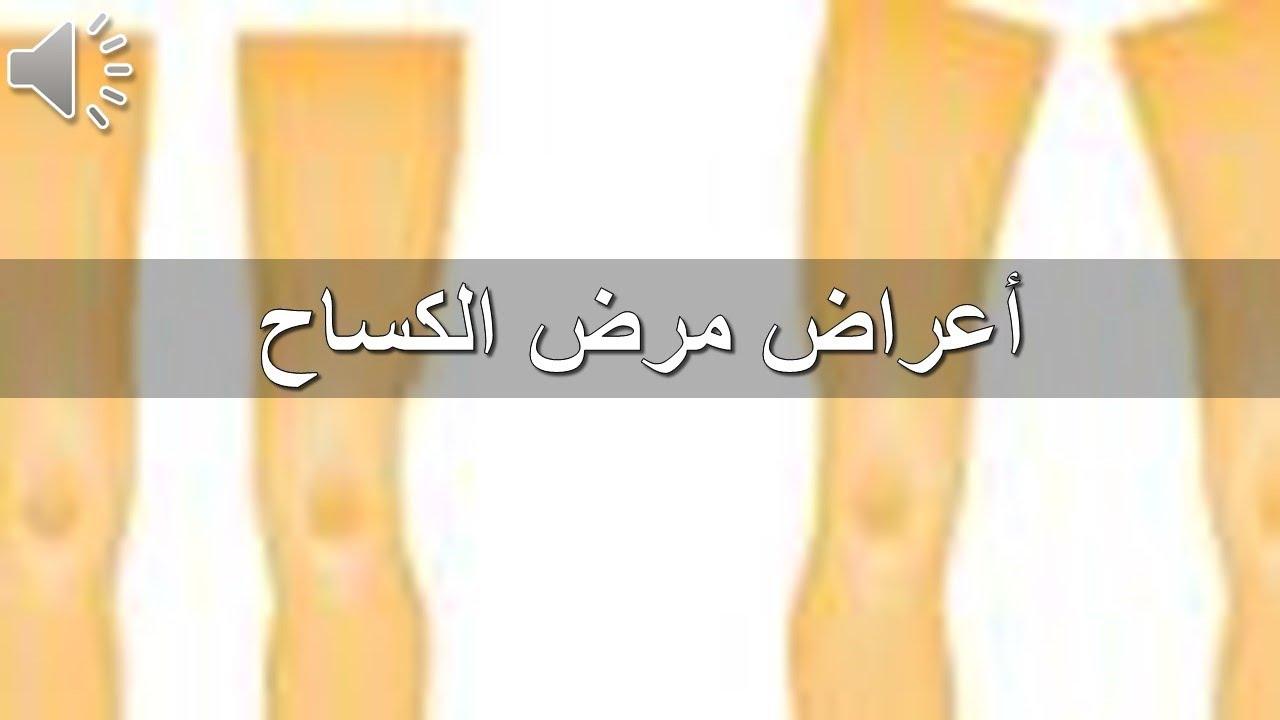 صور مرض الكساح , تعرف على اسباب وعلاج مرض الكساح