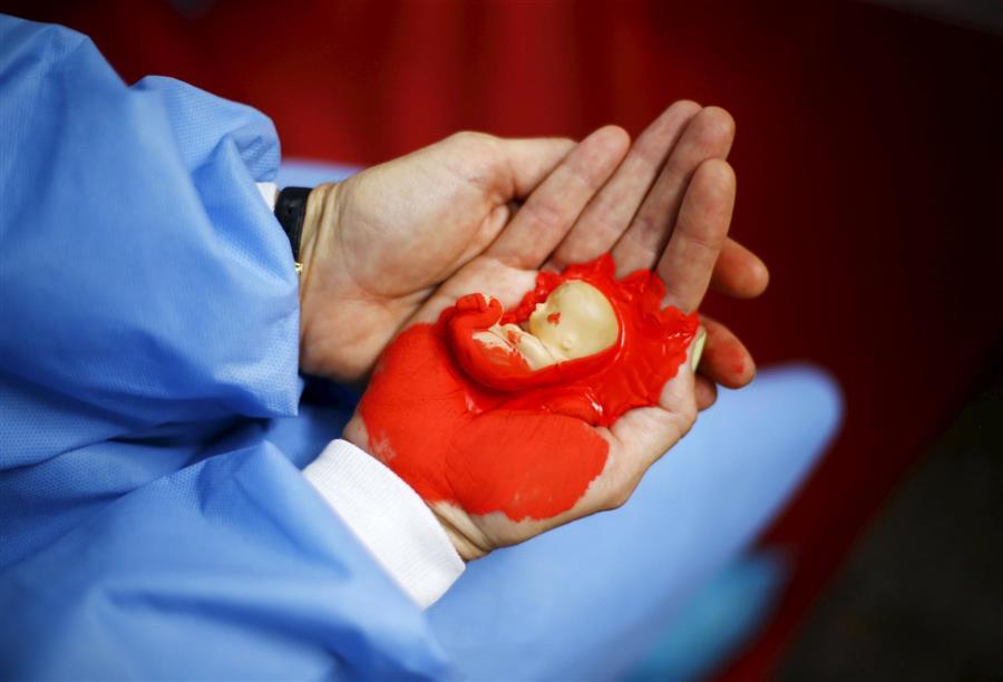 بالصور جرعة سايتوتك للاجهاض , تعرفي على الجرعة المناسبة من سايتوتك للاجهاض 3594 2
