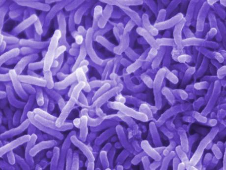 بالصور مرض الكوليرا , معلومات عن مرض الكوليرا 375 2