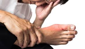 بالصور علاج النقرس بالاعشاب , كيفيه علاج النقرس بالاعشاب 404 1