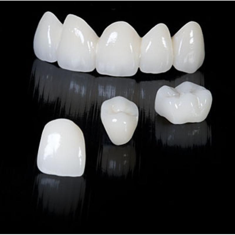 بالصور طقم اسنان , تحتاج لتركيب طقم اسنان تعرف عليه اكثر عن قرب 5107 1