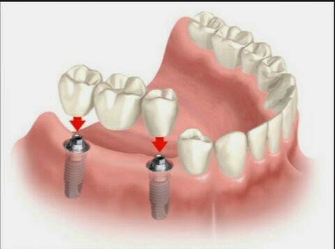 بالصور طقم اسنان , تحتاج لتركيب طقم اسنان تعرف عليه اكثر عن قرب 5107 4