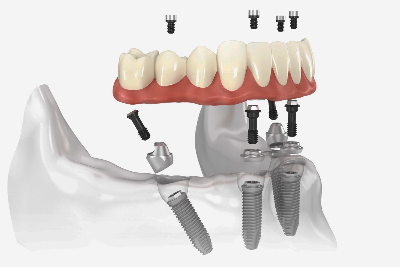 بالصور طقم اسنان , تحتاج لتركيب طقم اسنان تعرف عليه اكثر عن قرب 5107 5