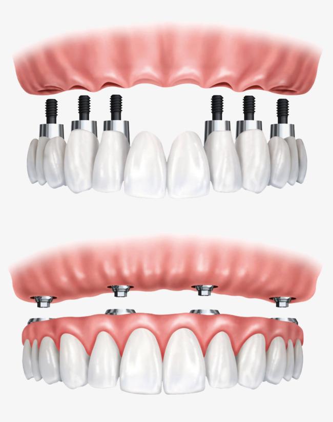 بالصور طقم اسنان , تحتاج لتركيب طقم اسنان تعرف عليه اكثر عن قرب 5107 6