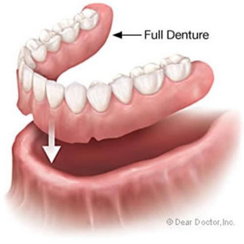 بالصور طقم اسنان , تحتاج لتركيب طقم اسنان تعرف عليه اكثر عن قرب 5107 7