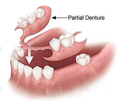 بالصور طقم اسنان , تحتاج لتركيب طقم اسنان تعرف عليه اكثر عن قرب 5107 8