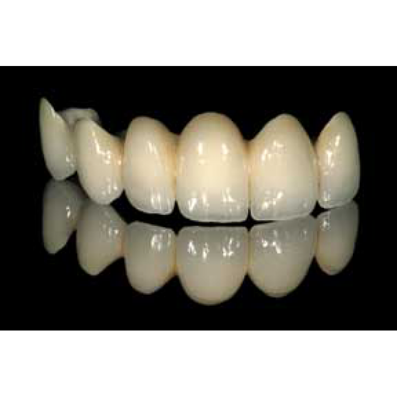 بالصور طقم اسنان , تحتاج لتركيب طقم اسنان تعرف عليه اكثر عن قرب 5107