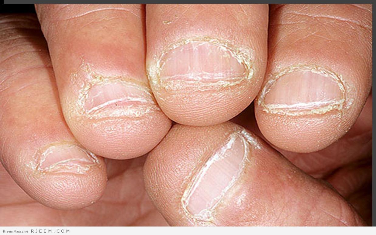 بالصور امراض الاظافر , تعرف على الامراض التي تصيب الاظافر 3684 2