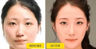 بالصور تنحيف الوجه , طريقه لتنحيف الوجه 69 2