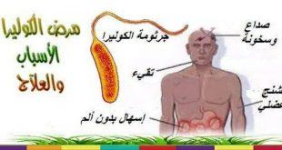 بالصور علاج مرض الكوليرا , طريقة للتخلص من الطاعون 12666 2 310x165