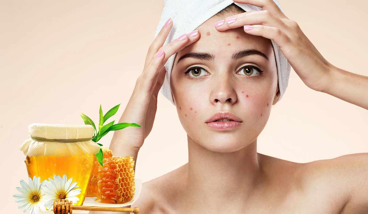 صور علاج حب الشباب للبشرة الدهنية بالعسل , ماسك للتخلص من الحبوب