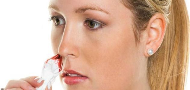 صور سبب نزيف الانف , امراض تصيب الانف