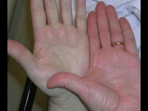 صور اعراض الانيميا وعلاجها , ماهي اعراض فقر الدم