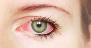 بالصور افضل علاج لجفاف العين , اسباب جفاف منطقة العيون 13004 2 310x165