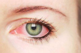 صورة افضل علاج لجفاف العين , اسباب جفاف منطقة العيون