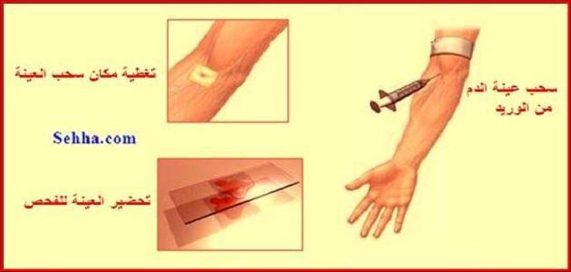 صور تحليل الدم الشامل ماذا يكشف , اهمية التحليل كل فترة
