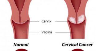 صورة ماهي اعراض سرطان الثدي عند البنات , علامات سرطان الثدي