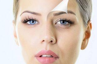 صور علاج الهالات السوداء , طرق ازالة العلامات السمراء تحت العين