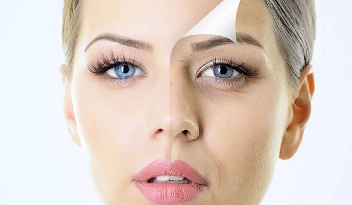 صورة علاج الهالات السوداء , طرق ازالة العلامات السمراء تحت العين
