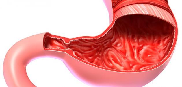 صورة علاج القولون الملتهب , التهابات القولون وعلاجها