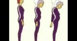 صورة علاج اعوجاج العمود الفقري عند الكبار , كيفيه الشفاء من انحناء العمود الفقرى للبالغين