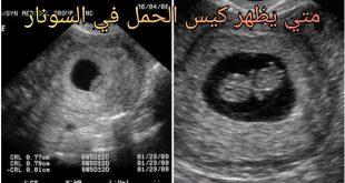 صورة متى يظهر كيس الحمل بالسونار , موعد ظهور الحمل في السونار 12488 1 310x165